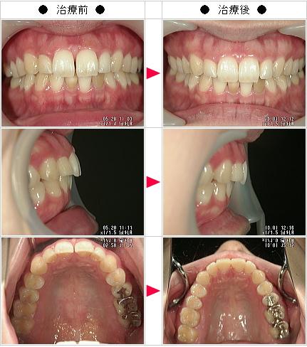 マウスピース矯正-すきっ歯矯正症例(かめこ様 27歳 女性)