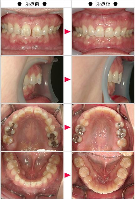 マウスピース矯正-すきっ歯矯正症例(RN様 40歳 女性)