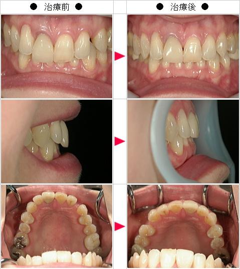 マウスピース矯正-すきっ歯矯正症例(さとう様 49歳 女性)