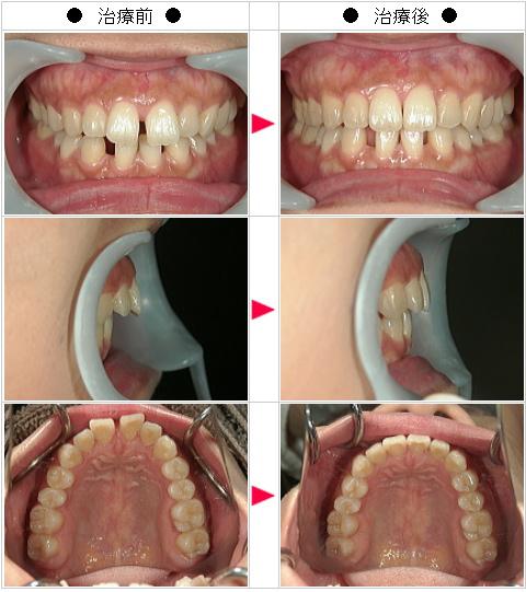 マウスピース矯正-すきっ歯矯正症例(S.N様 27歳 女性)