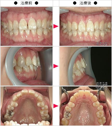 マウスピース矯正-すきっ歯矯正症例(T.Y様 25歳 女性)