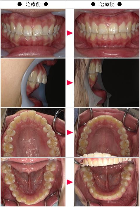 マウスピース矯正-歯のデコボコ矯正症例(C.H様 18歳 女性)