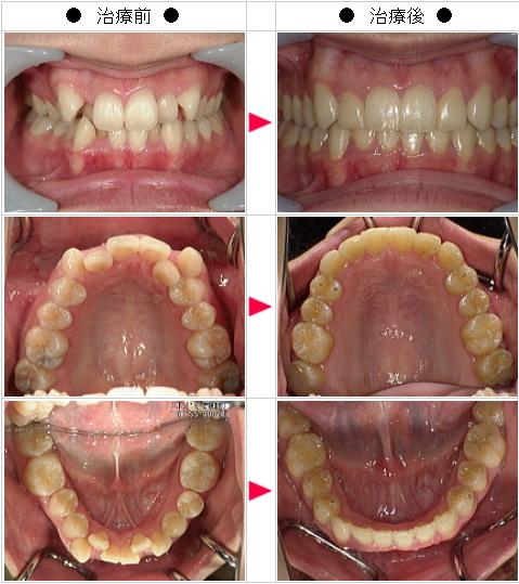 マウスピース矯正-歯のデコボコ矯正症例(H.I様 27歳 女性)