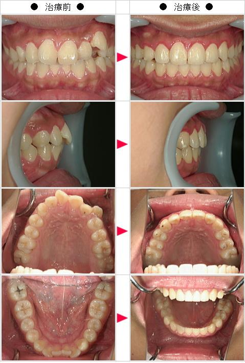 マウスピース矯正-歯のデコボコ矯正症例(K・T様 17歳 男性)
