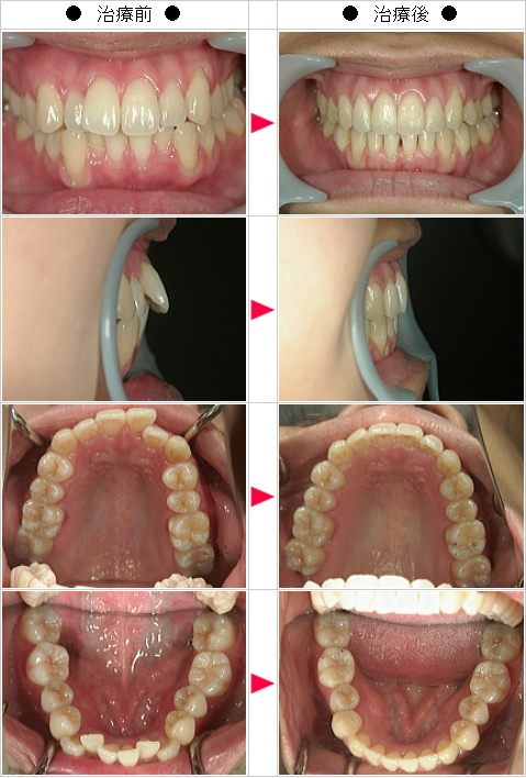 マウスピース矯正-歯のデコボコ矯正症例(N・K様 29歳 女性)