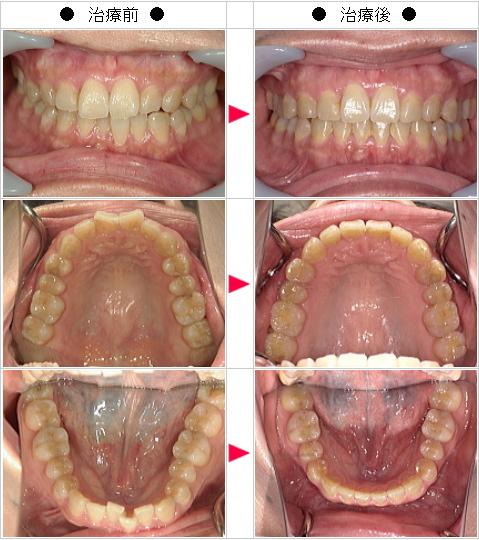 マウスピース矯正-歯のデコボコ矯正症例(OY様 47歳 女性)