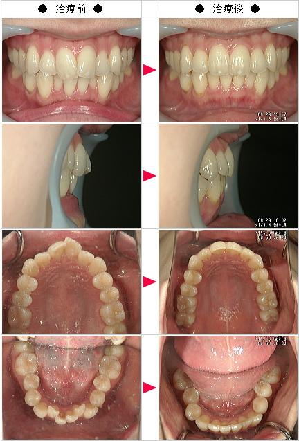 マウスピース矯正-歯のデコボコ矯正症例(R・M様 24歳 女性)
