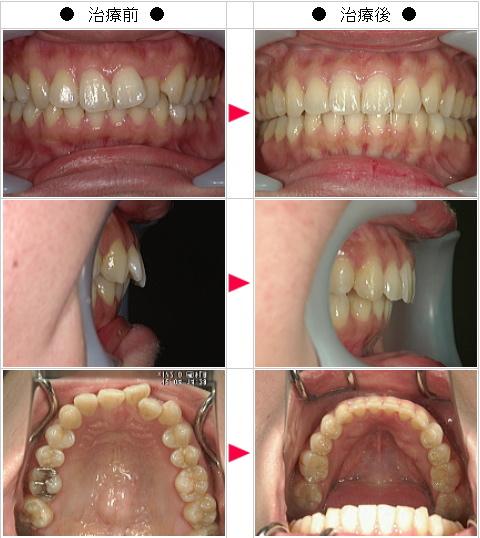 マウスピース矯正-歯のデコボコ矯正症例(Y・K様 36歳 女性)