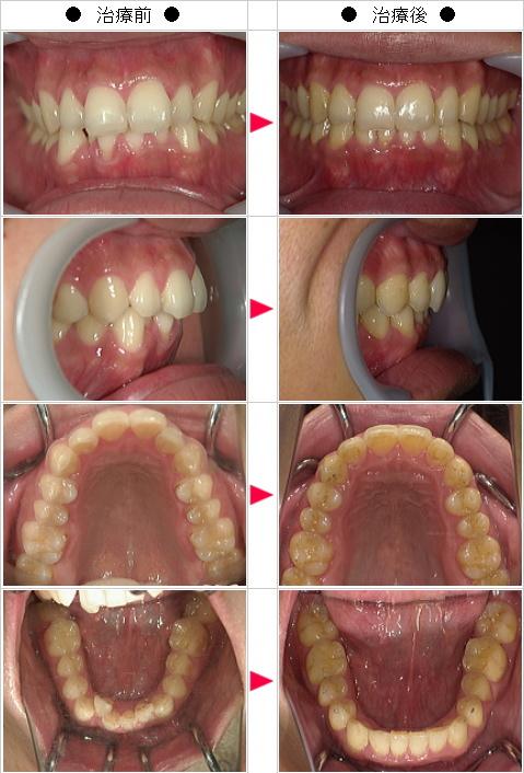 マウスピース矯正-歯のデコボコ矯正症例(Y.W様 35歳 男性)