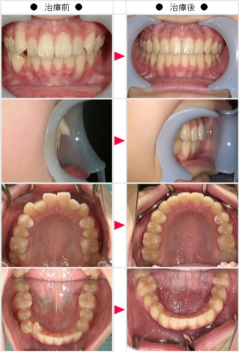 マウスピース矯正-出っ歯矯正症例(A.T様 女性)