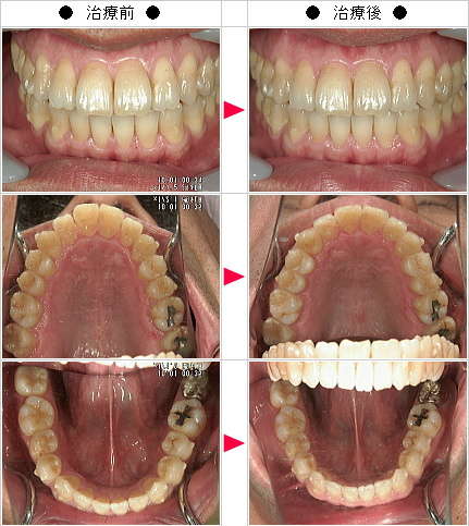 マウスピース矯正-出っ歯矯正症例(奥田様 46歳 男性)