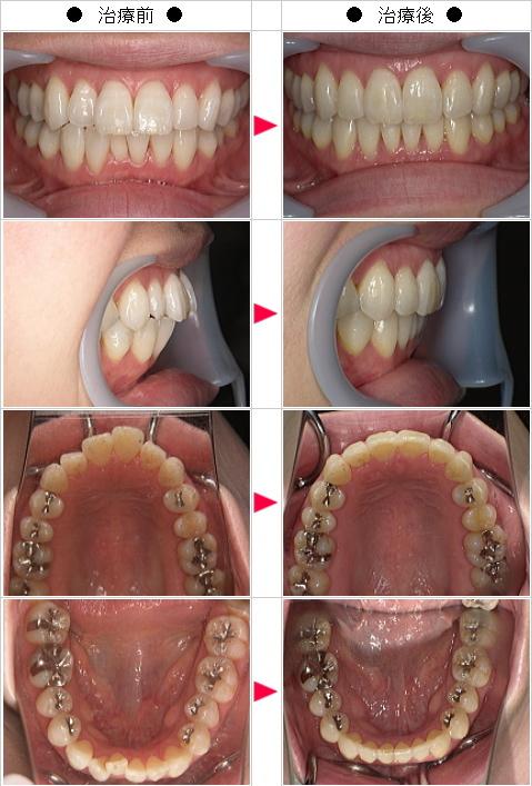 マウスピース矯正-出っ歯矯正症例(R.M様 37歳 女性)