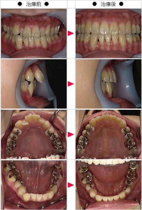 マウスピース矯正-出っ歯矯正症例(S・N様 40歳 女性)