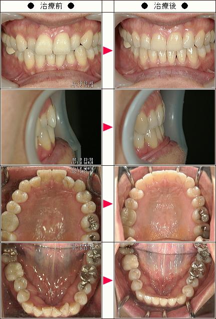 歯のデコボコ矯正症例(42歳 女性)