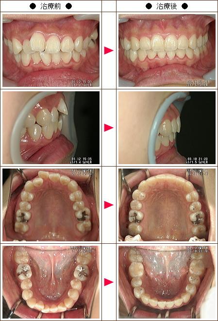 歯のデコボコ矯正症例(A様 17歳 女性)