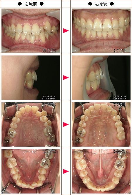 歯のデコボコ矯正症例(H・M様 36歳 女性)