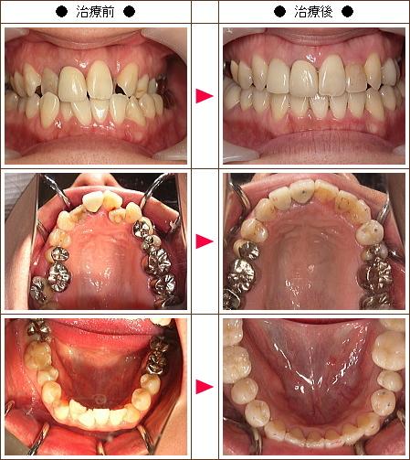 歯のデコボコ矯正症例(剣持様 35歳 女性)