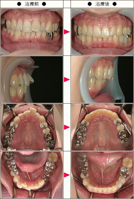 歯のデコボコ矯正症例(K・M様 45歳 女性)
