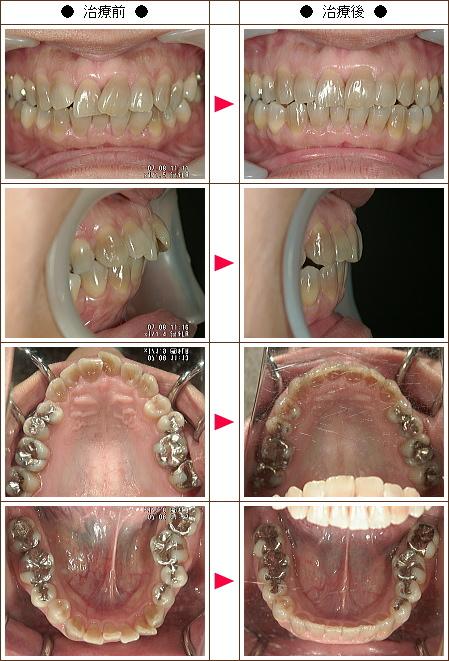 歯のデコボコ矯正症例(K.O様 42歳 女性)