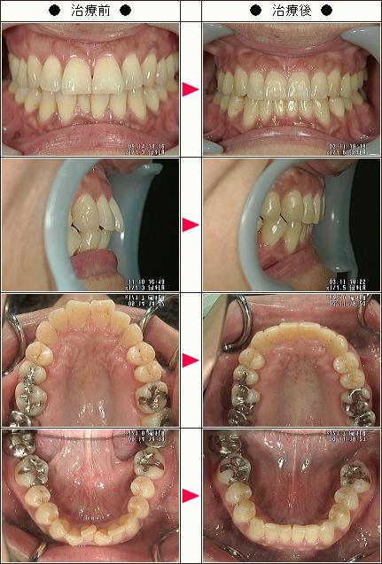 歯のデコボコ矯正症例(小久保様 46歳 女性)
