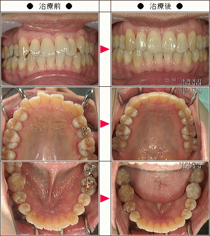 歯のデコボコ矯正症例(M.C様 51歳 女性)