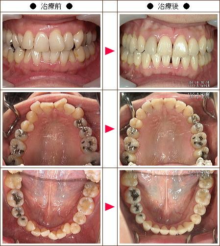 歯のデコボコ矯正症例(蜜柑様 42歳 女性)