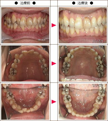 歯のデコボコ矯正症例(宮崎様 43歳 女性)