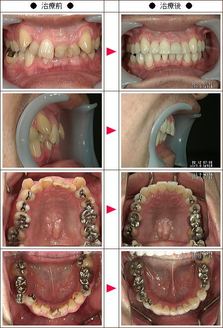 歯のデコボコ矯正症例(N.A様 48歳 男性)