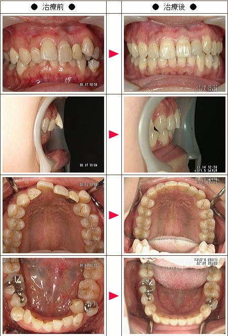 歯のデコボコ矯正症例(なおこ様 33歳 女性)