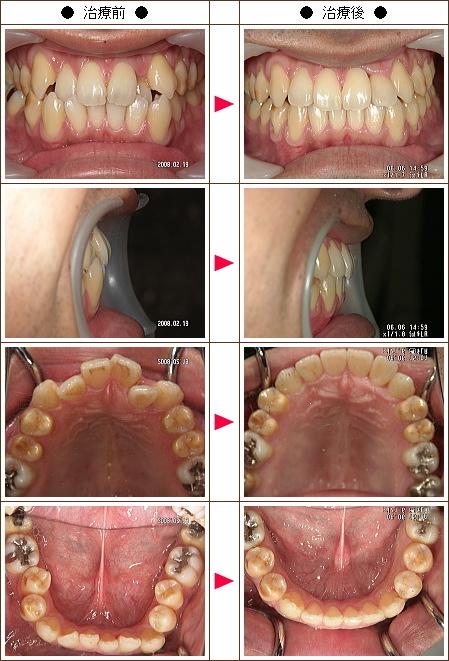 歯のデコボコ矯正症例(清治様 31歳 男性)