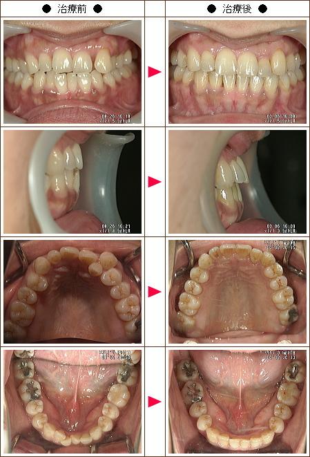 歯のデコボコ矯正症例(Snow様 49歳 女性)