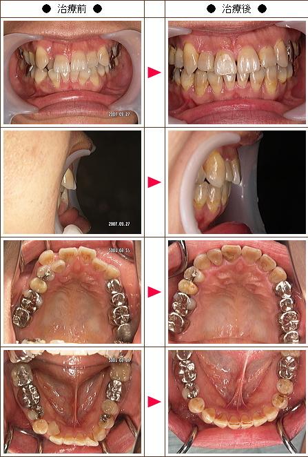 歯のデコボコ矯正症例(S.S様 43歳 女性)