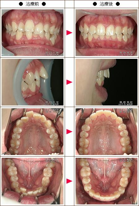 歯のデコボコ矯正症例(S・Y様 21歳 女性)