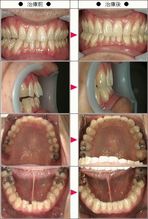 歯のデコボコ矯正症例(T.S様 41歳 男性)