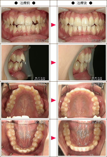 出っ歯矯正症例(くみ様 18歳 女性)