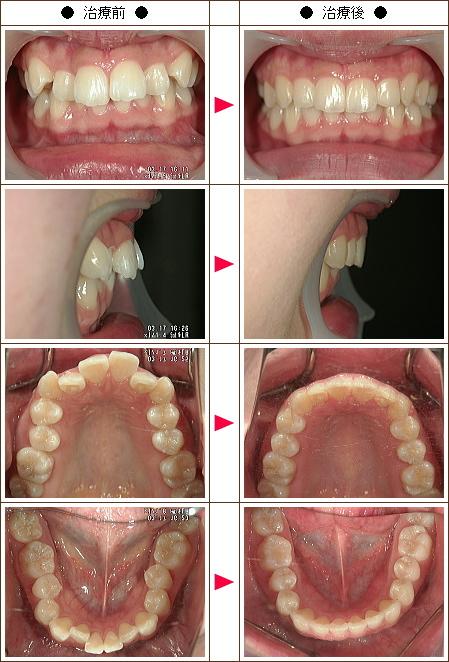 出っ歯矯正症例(宮地様 18歳 女性)