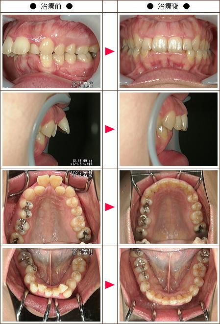 出っ歯矯正症例(M.K様 35歳 女性)