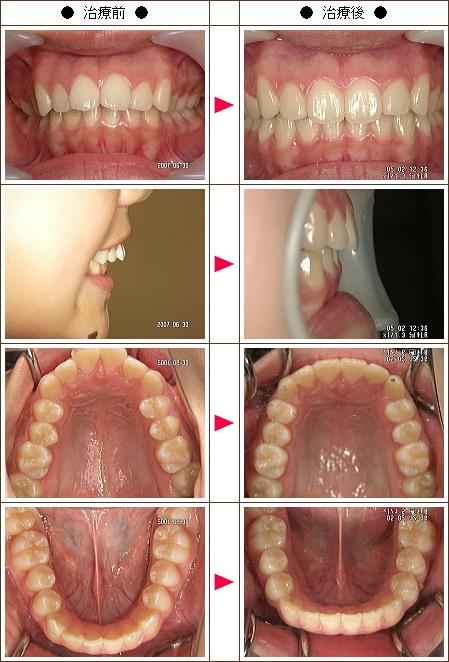 出っ歯矯正症例(M.W.様 15歳 女性)
