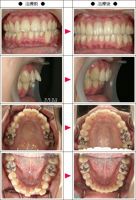 出っ歯矯正症例(R.Y様 31歳 女性)