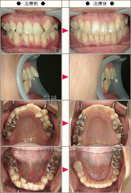 出っ歯矯正症例(S.A様 33歳 女性)