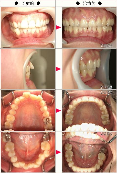 出っ歯矯正症例(Y.N様 43歳 女性)