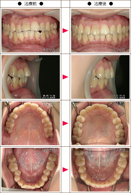 出っ歯矯正症例(Y・T様 27歳 女性)
