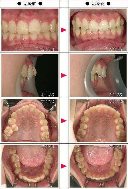 出っ歯矯正症例(ゆこゆこ様 16歳 女性)
