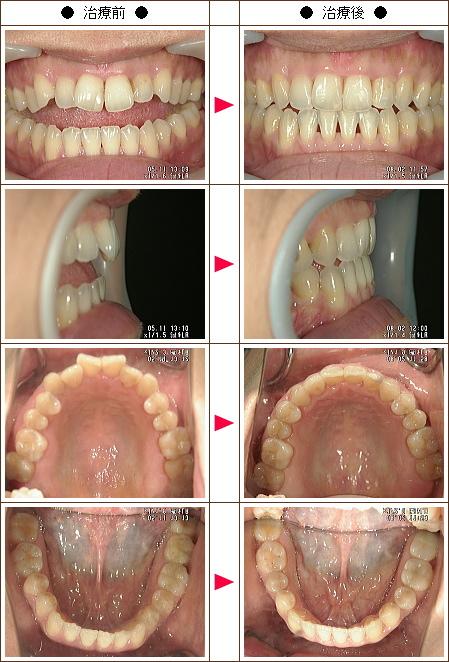 歯の開口矯正症例(C・M様 43歳 女性)