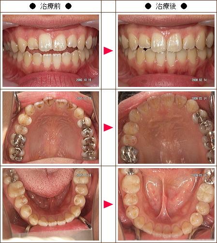 歯の開口矯正症例(小林様 30歳 女性)