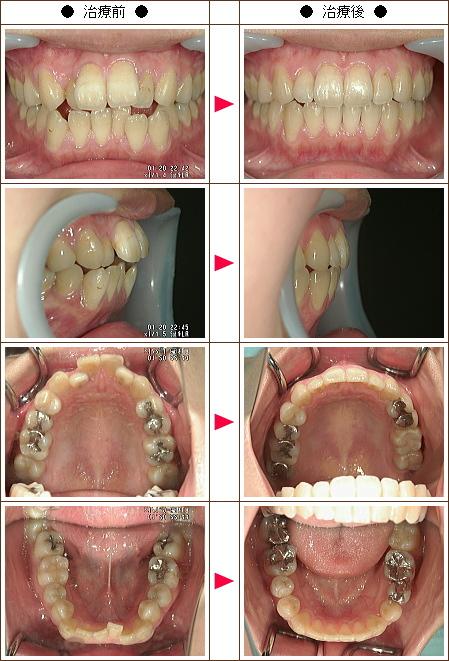 歯の開口矯正症例(M.T様 22歳 女性)