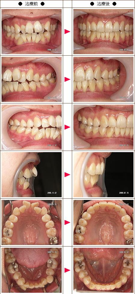 歯の開口矯正症例(ナカノ様 34歳 女性)