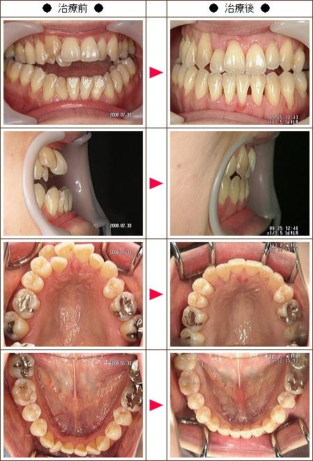 歯の開口矯正症例(佐藤様 37歳 女性)