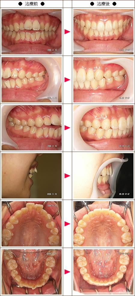 歯の開口矯正症例(スドウ様 19歳 女性)