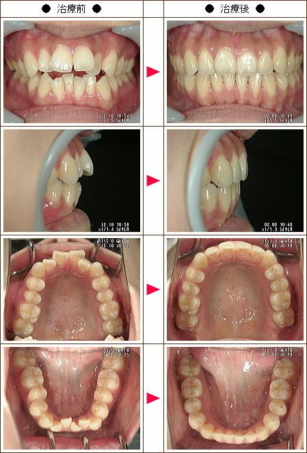 歯の開口矯正症例(ダブリュー様 25歳 女性)
